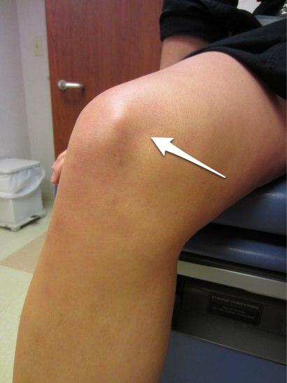 Plica Syndrome | Dr. David Geier - Sports Medicine Simplified