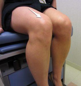 Quad tendon