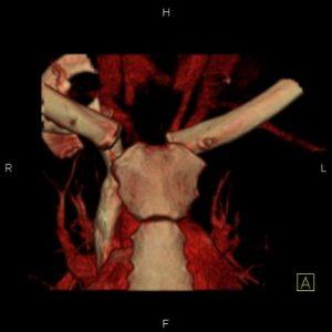 Posterior sternoclavicular dislocation