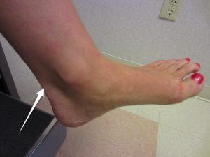 Location of Achilles tendon pain