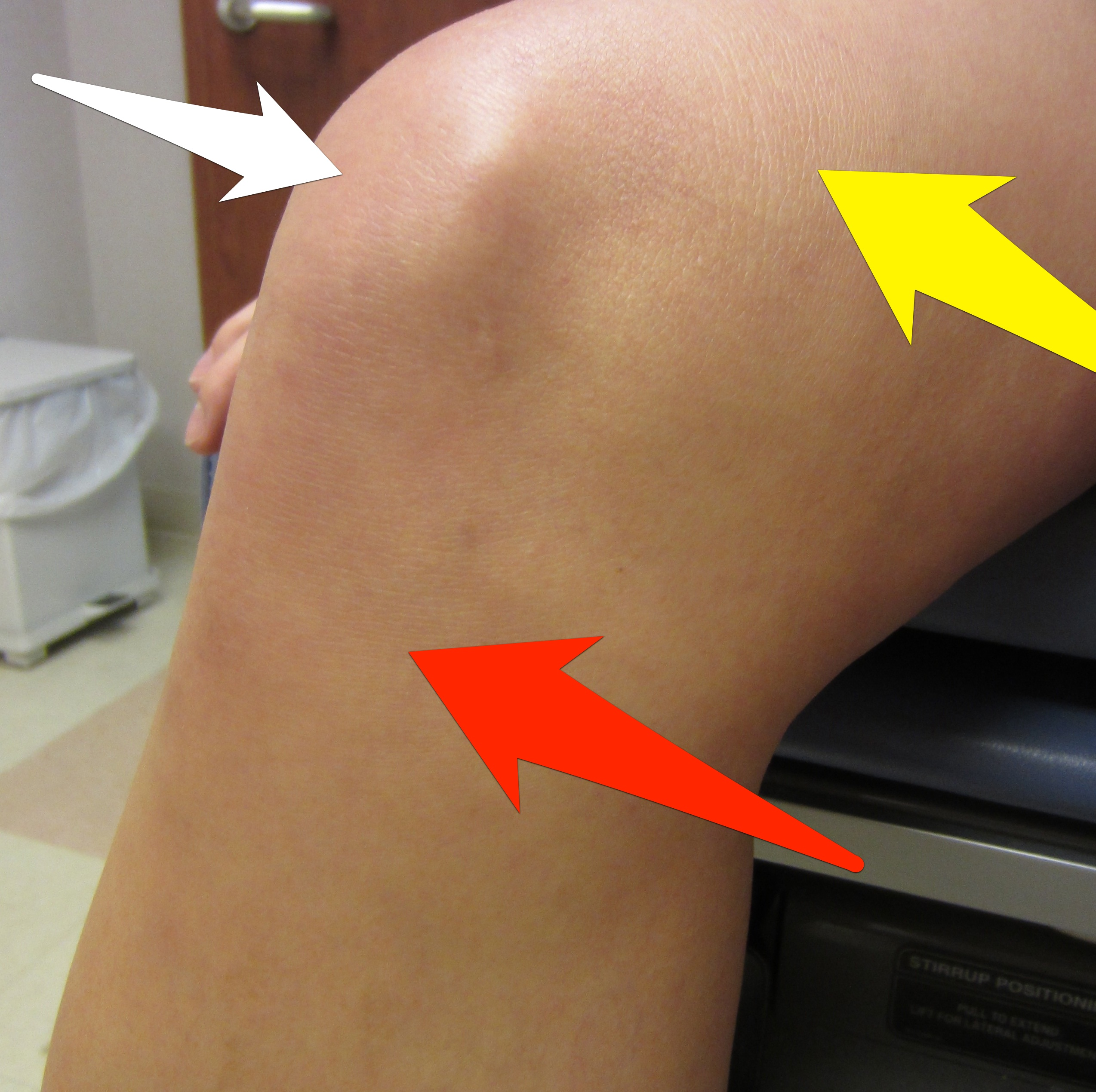 Andrew Bynum\'s Knee: Devastating Possibility of Osteochondritis ...
