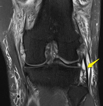 LCL sprain