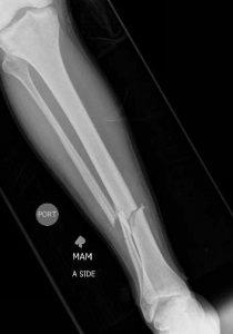 Tibia and fibula fracture