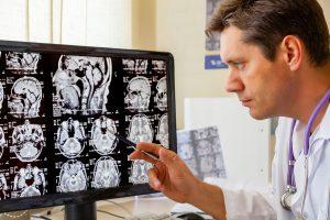 Brain MRI doctor reading