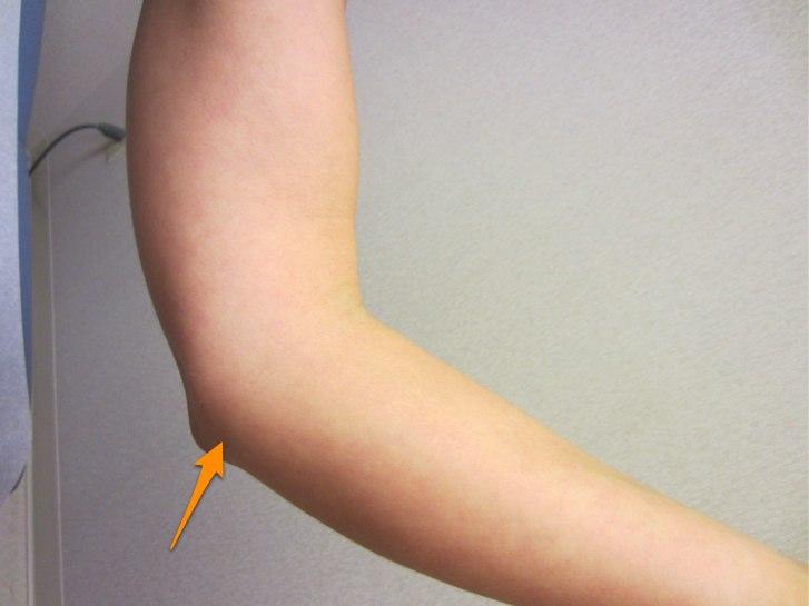elbows crack while doing push ups