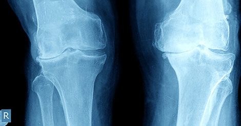 sports medicine stats osteoarthritis after acl surgery