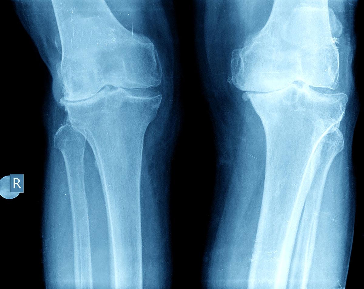 X-rays and MRI for knee arthritis | Dr. David Geier ...