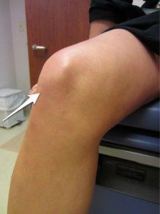 Location of the patellar tendon