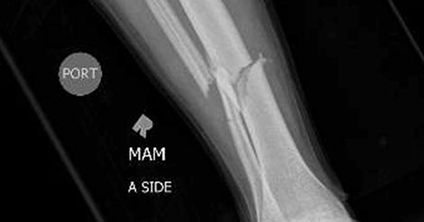 Tibia fracture: Questions about the injury, treatment and
