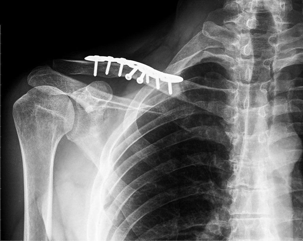 radiology and collar bone cracker Three reasons why your thyroid medication isn't working personally i have noticed when i eat a cracker or bread my stomach does get more uncomfortable.