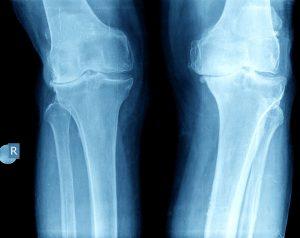 Knee arthritis x-rays