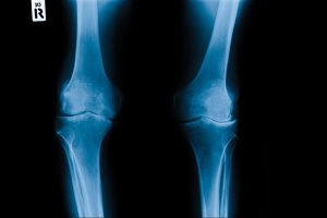 Will you develop arthritis in your knees years after ACL surgery?