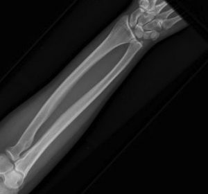 If you break a bone, an x-ray is needed to make the diagnosis.