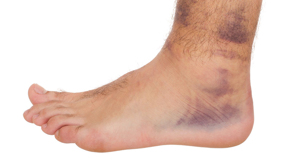 Tips to prevent a pickleball injury | Dr. David Geier ...