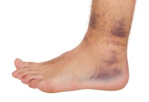 Man with ankle pain weeks after an ankle sprain