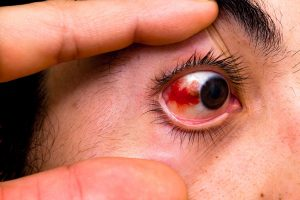 Wear protective eye wear to prevent a pickleball injury