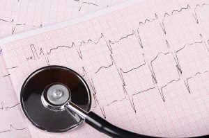 Experts debate whether ECG screening prevent cardiac emergencies, like the one suffered by Ty Solomon