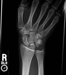 Xray showing a scaphoid fracture