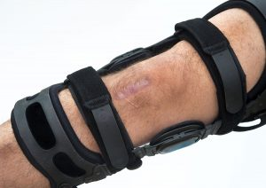 A patient wears a custom brace after ACL surgery