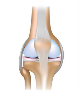 A patellar tendon rupture involves the tendon just below the patella (kneecap).
