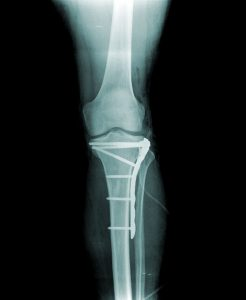 X-ray of a tibial plateau fracture after surgery to fix the fracture