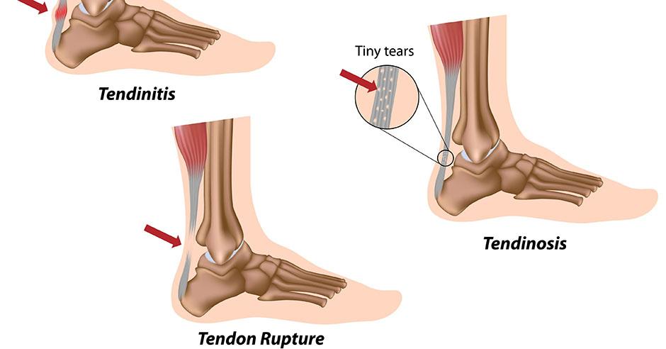 achilles tendon tear treatment options