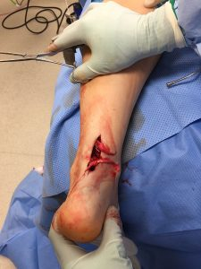 Surgical image of an Achilles tendon rupture