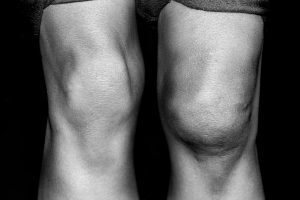 Man whose knee is swollen after a knee injury