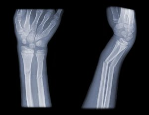 How to know if you broke a bone
