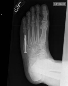 X-ray showing surgery of a Jones fracture, or fifth metatarsal fracture
