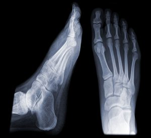 Foot x-rays don't always show a metatarsal stress fracture