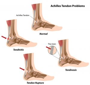 Illustration showing injuries of the Achilles tendon