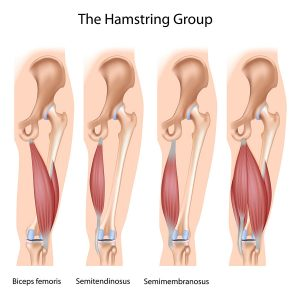 Illustration of the muscles involved in a hamstring strain