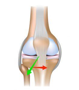 The patellar tendon is the tendon just below the patella, or kneecap