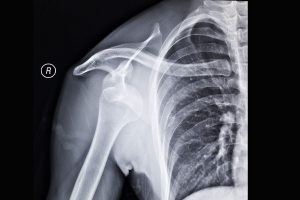 X-ray of a patient with a shoulder dislocation